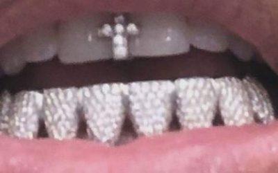 Grillz dentales: riesgos y recomendaciones