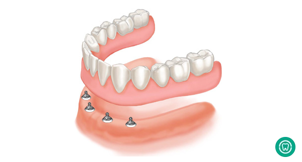 Mini Dental Implants: Pros and Cons